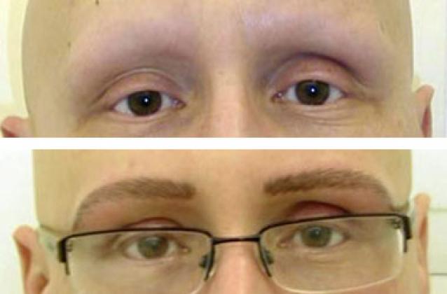 Tricopigmentazione e Alopecia